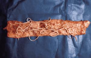 Dog roundworm on the dog's gut. Photo courtesy Nick Sangster, University of Sydney